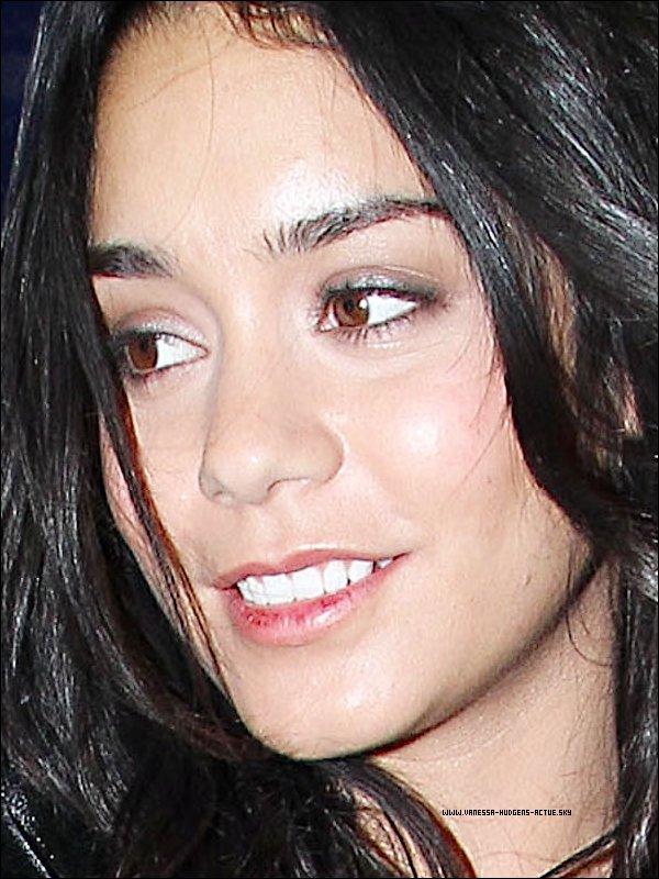 -  Zoom sur le visage de Vanessa on peux voir qu'elle a les lèvre abîmé -