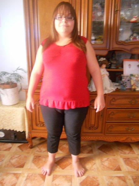 Avant/apres -20kilos - anneau gastrique et régime