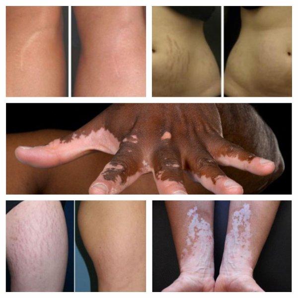Le camouflage des cicatrices et vergetures est aussi une branche intéressante du tatouage