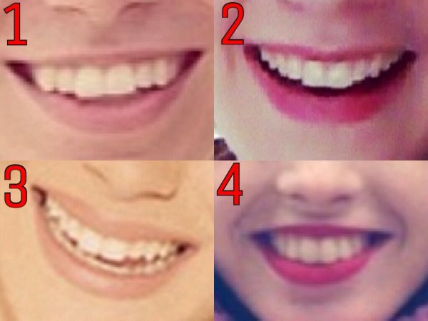 Petit jeu: À qui appartient ce sourire?