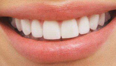 [VISAGE Nº1] Avoir les dents un peu plus blanches sans passer par la case dentiste, c'est possible.