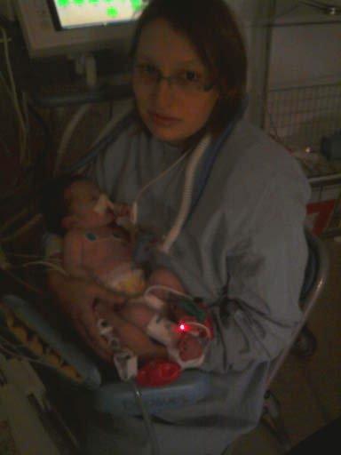07/11/2010 réa la timone veille de l'opération