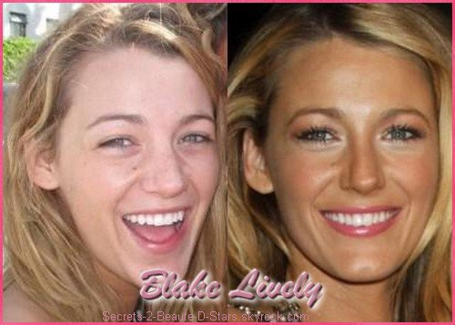 Belle comme...Blake Lively