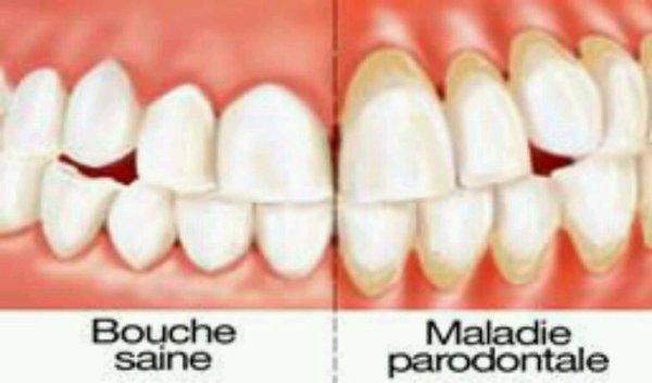 Petite complication  : parodontite aiguë.