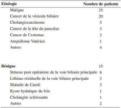 Sténose post-opératoire de la voie biliaire principale due à un névrome d'amputation post-cholécystectomie