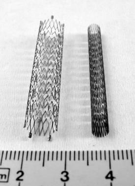 Prothèses biliaires et obstructions malignes des voies biliaires extrahépatiques