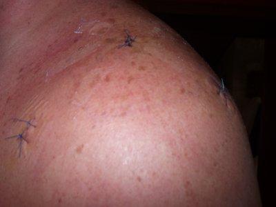 mon opération de l'épaule