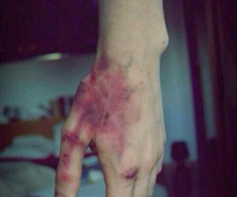 L'auto-destruction est devenu mon seul moyen d'expression. ♥