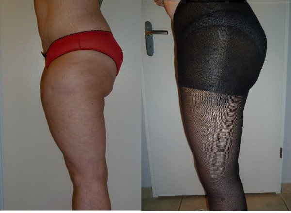 Photo comparaison avant/après lifting des cuisses