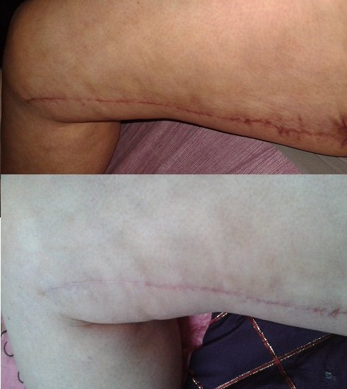 Mes cicatrices à J+6 mois