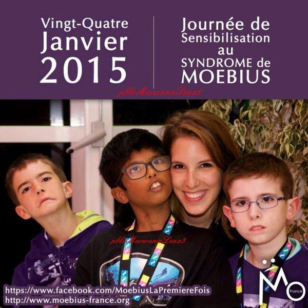 Léa François electric girl  Association mondiale sensibilisation au Syndrome de Moebuis