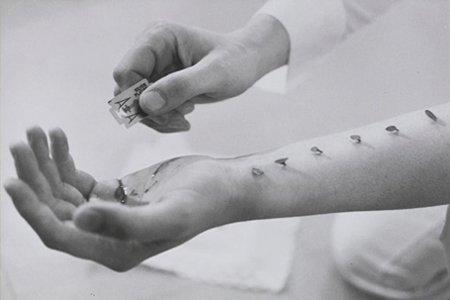 La mutilation : Qu'es que c'est ?