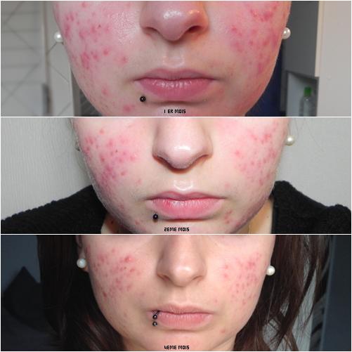 Evolution au bout de 4 mois - Mon combat contre l'acné