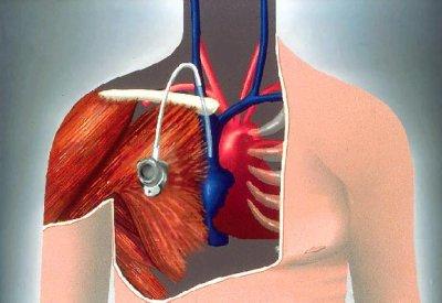 Chambre implantable regime et volont - Chambre a catheter implantable ...