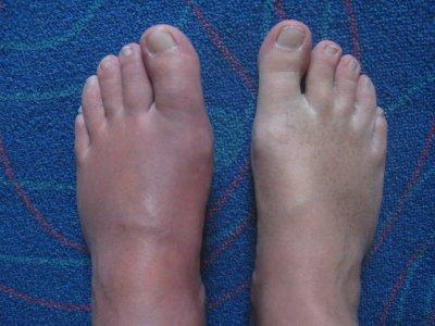 crise arthrite pied