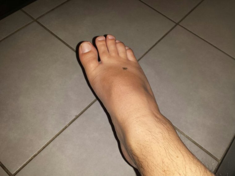 Une mouche se ballade sur mon pied ...