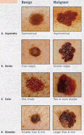 La quantité de taches de rousseur sur le corps