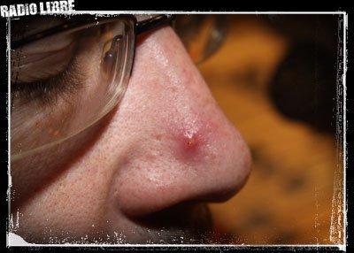 nez rouge bouton