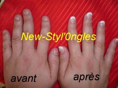 pose de rajouts sur ongles rongés