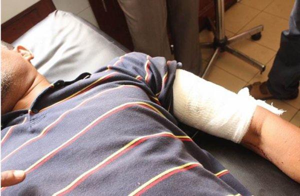 COMORES : Le garde du corps de Mamadou blesse un homme par balle