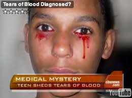 Il pleure des larmes de sang