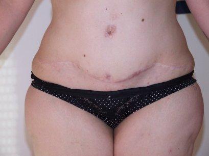 un ptit apercu de mes cicatrises à 1 an et 7 mois post op